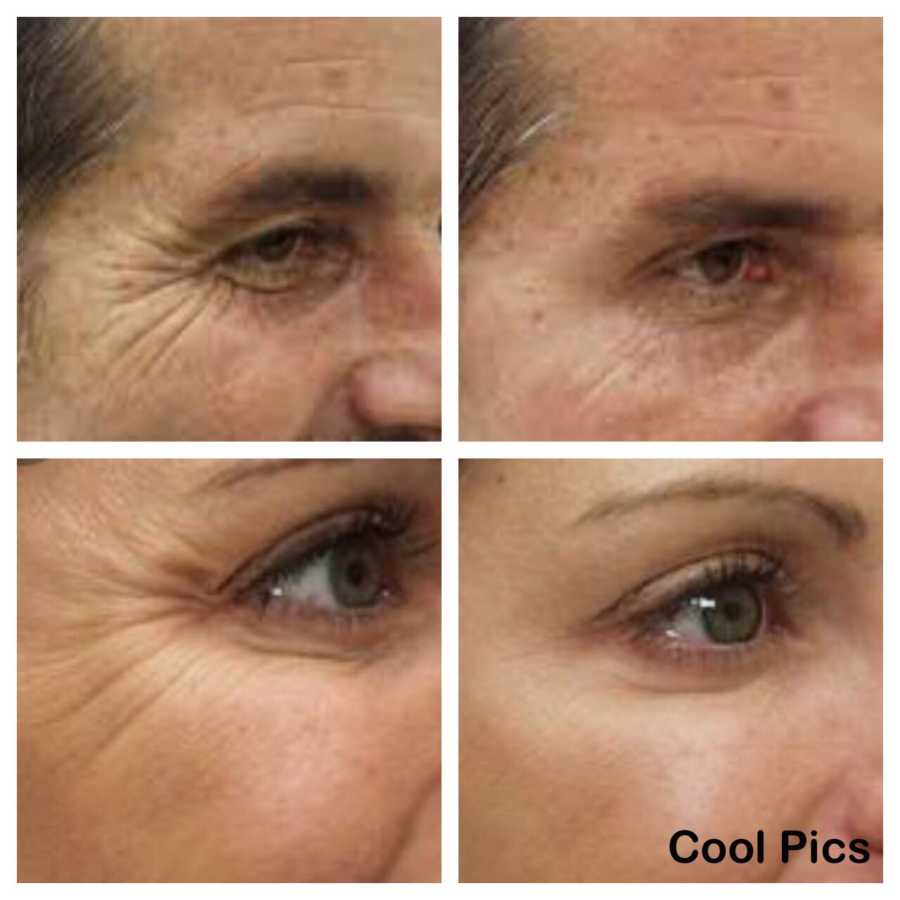 Details about Under Eye Cream Remove Dark Circles Bags Face Lines Ageless Wrinkles Best