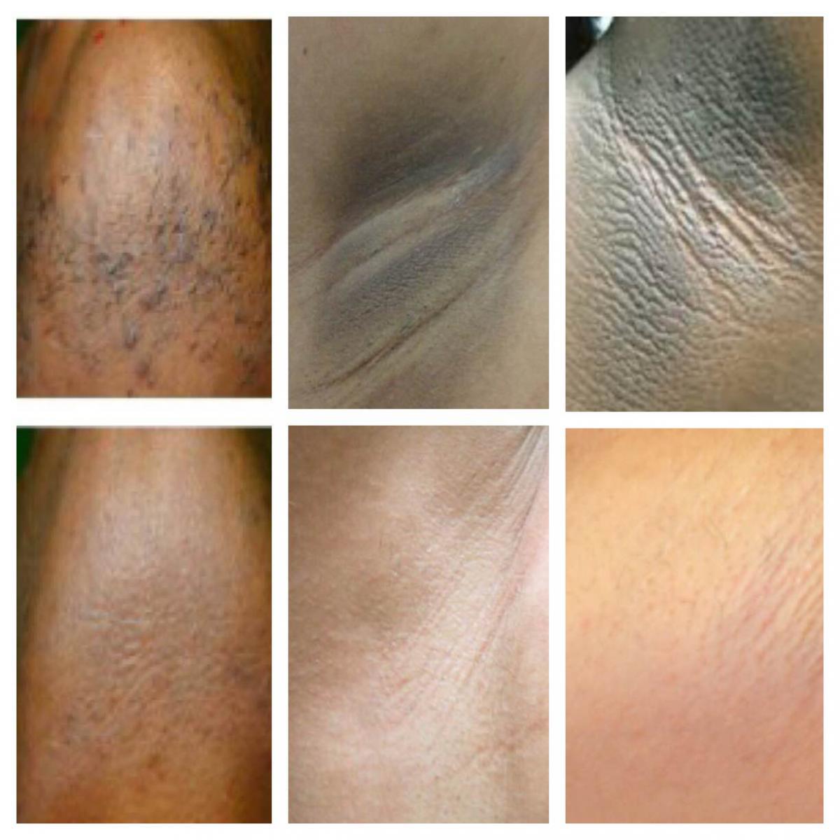 Осветление отбеливание кожи